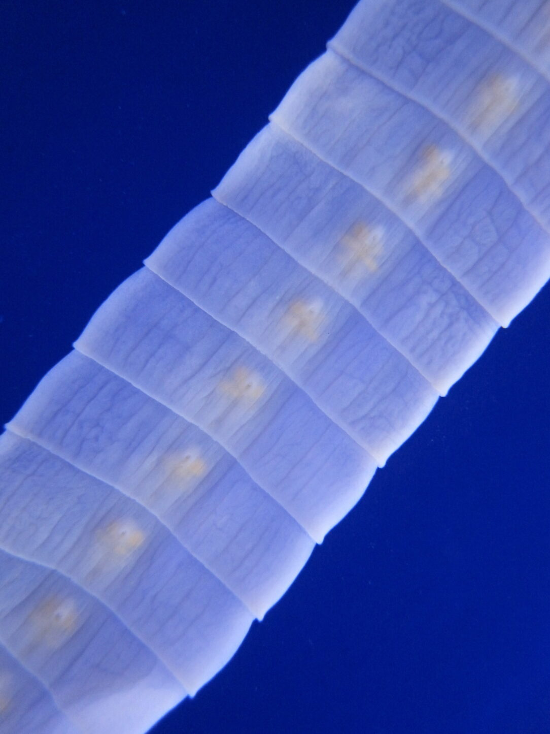 close-up picture of tapeworm