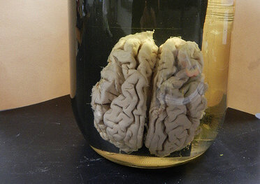 photo of a human brain in a jar